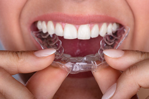 Invisalign or Braces: Which Is Right for You?